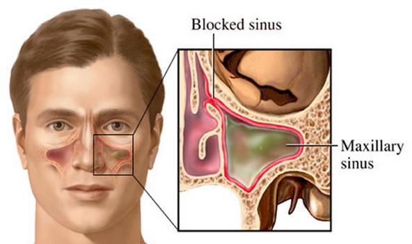 Obat Sinusitis Kronis Yang Alami